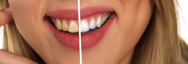 Before after picture of whitened teeth